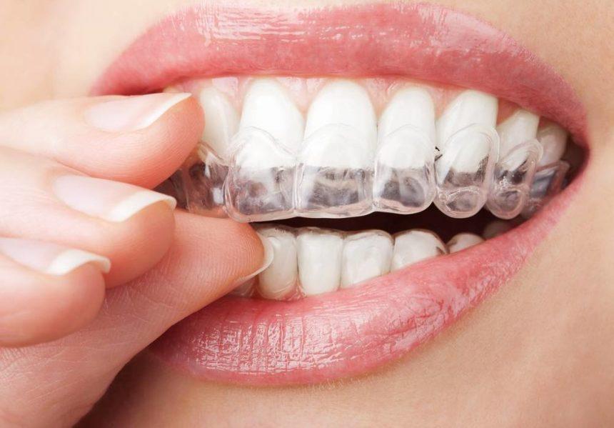 Ortodonzia e Gnatologia